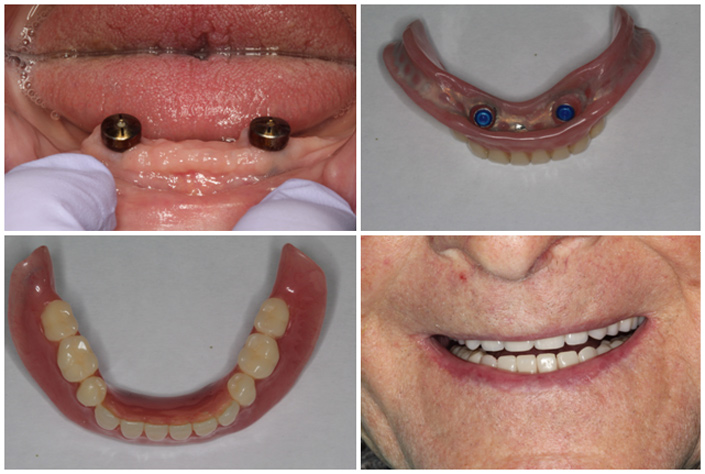 Dentures Cosmetic dentistry full partial complete dentures