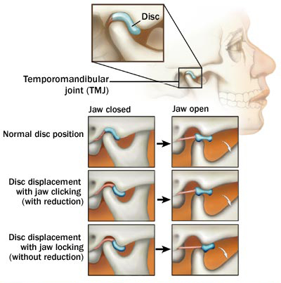 tmj problems resulting from oral sex