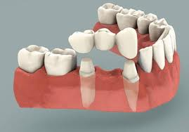Dental Bridge Dental Bridges dentist in guelph cosmetic