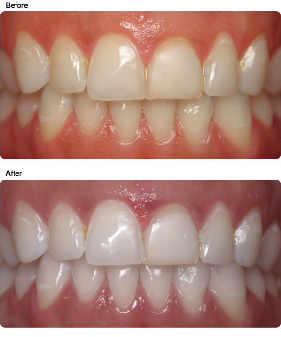 cosmetic teeth whitening tooth whitening guelph dentist office