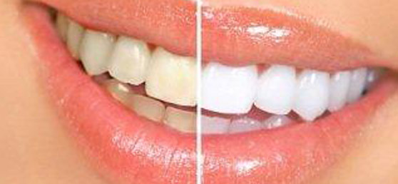 tooth whitening at home in office dentist guelph smile bright white