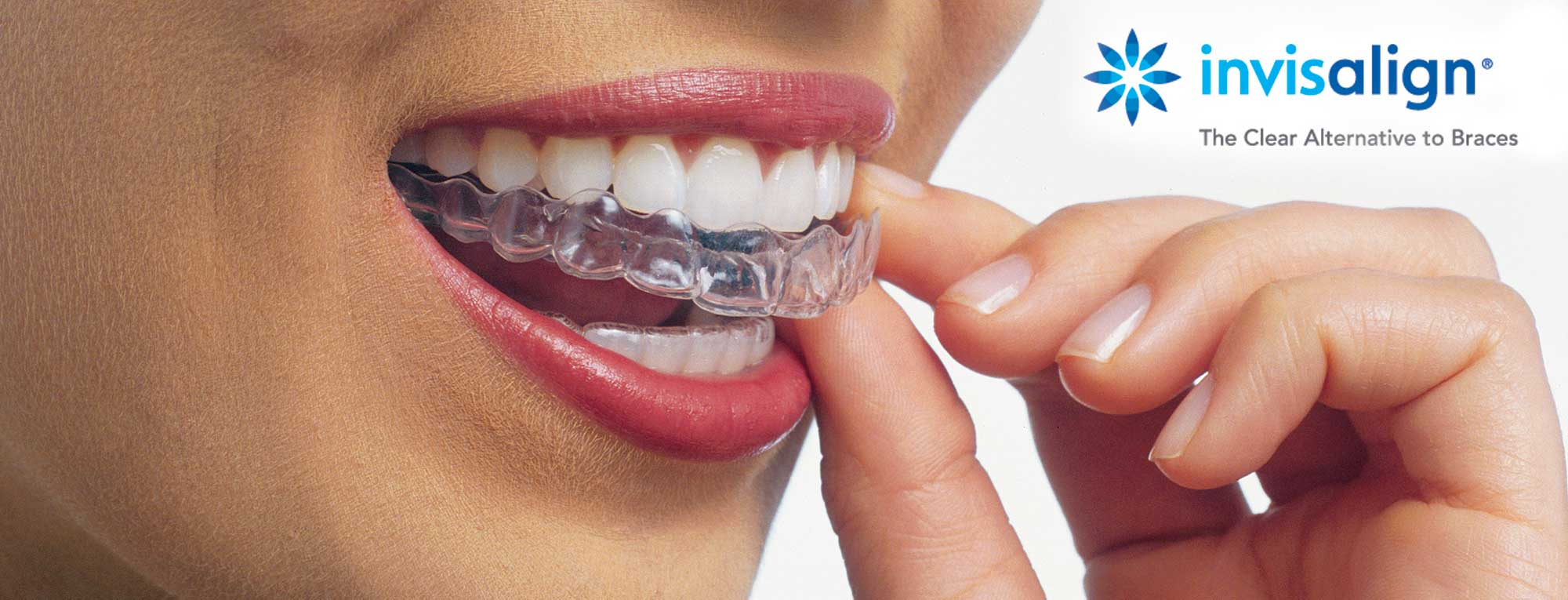 Invisalign-clearalternative